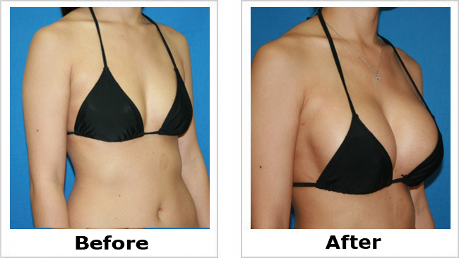 Breast enlargement surgery uk