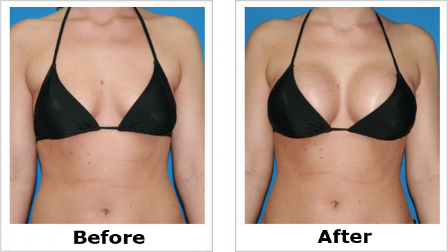 Image result for breast enlargement surgery